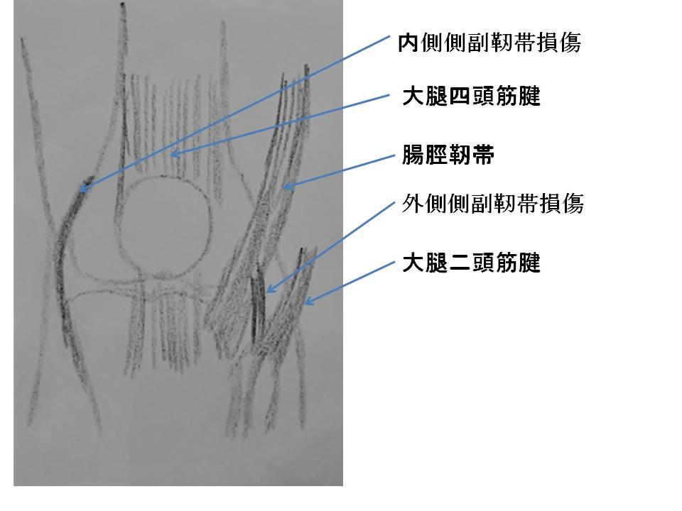 みぎひざの正面から見たイラストです。靱帯(外側側副靭帯、内側側副靭帯、腸脛靭帯、大腿四頭筋腱、大腿二頭筋腱の位置を示しています。