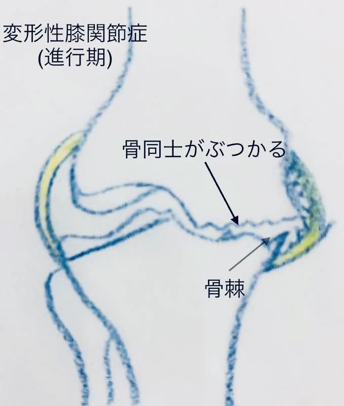 変形性膝関節症の進行期のイラストです。軟骨が薄くなり骨同士がぶつかり骨が変形しています。骨棘になっているイラストです。