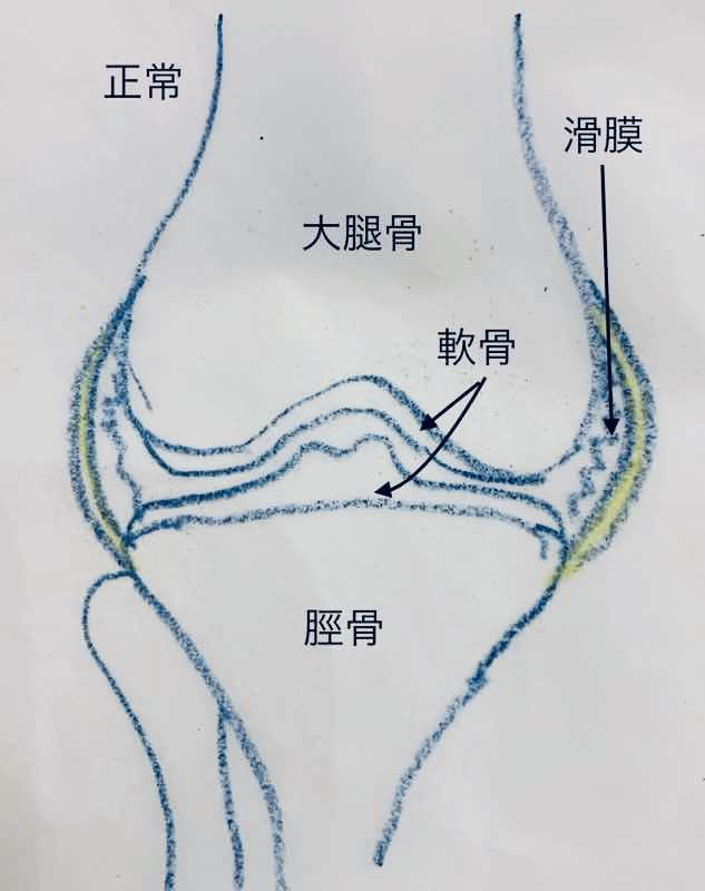 正常の膝関節のイラストです。大腿骨、脛骨、軟骨、滑膜の位置関係がわかるイラストです。