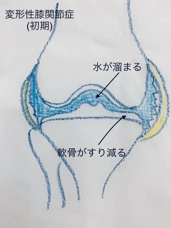 変形性膝関節症の初期の段階のイラストです。軟骨がすり減り関節の間が狭くなっている様子が分かります。また関節の中に水が溜まった様子のイラストです。