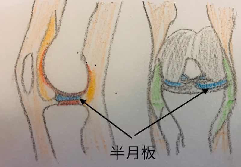 半月板の位置関係がわかるイラストです。半月板は膝関節にあり大腿骨と脛骨の間にあります。半月板は、関節でクッションのような働きをしています。